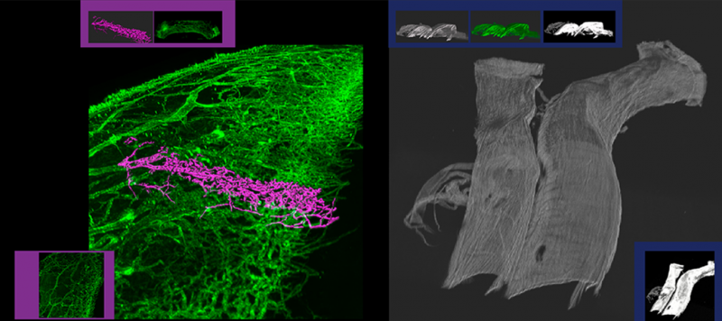 "LEFT: By using VR to explore the white of an eye, Nils Loewen saw outflow tracts that he couldn't before. It turns out that the collapse of these tracts (highlighted in purple) leads to glaucoma. RIGHT: These are human cerebral vessels. Engineer Anne Robertson says she never would have been able to see the artery's fibers in this detail and over such a ""vast"" area without the CBI's novel techniques."