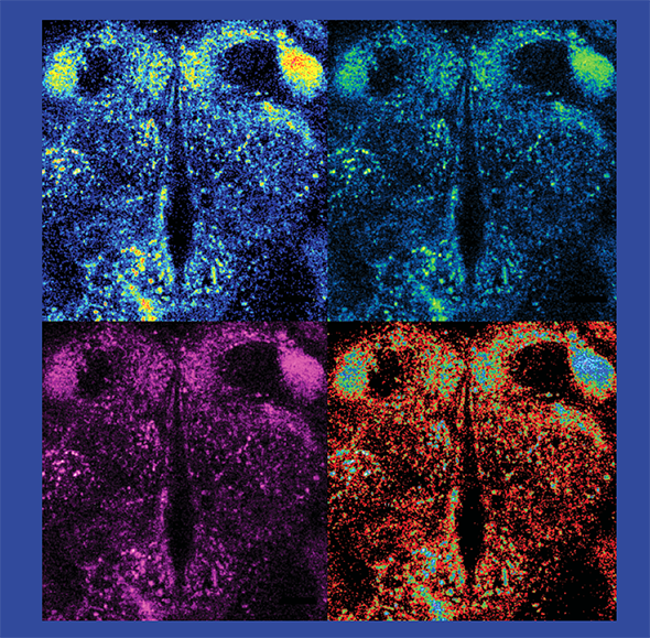 Using fluorescent tools, Freyberg found that pH level may play an important role in how neurons talk to one another. Here, four different color filters illuminate dopamine in the adult fly brain.