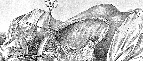 Before the NSABP studies, radical mastectomy (illustrated here) was the accepted treatment for breast cancer; it involved removing not only the breast but also the chest wall muscles, the nearby lymph nodes, and sometimes even both breasts. (Wikimedia Commons.)