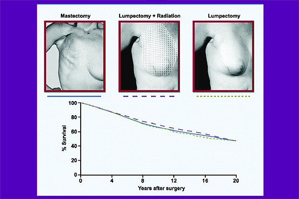 A Fisher paper shows that survival outcomes are similar for women receiving radical mastectomy, lumpectomy plus radiation, and lumpectomy alone.