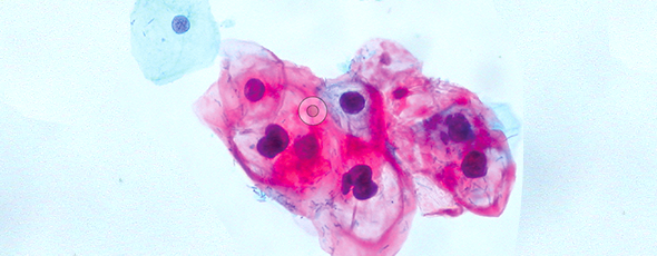 The HPV epidemic has led to a sharp increase in HPV-related head and neck cancer. Many patients survive, thanks to today's treatments. But then they face new obstacles related to their condition. Clinicians at Pitt have realized that these survivors need coordinated care long-term.  Shown here: normal (blue) and HPV-infected cells (red). Image: Wikimedia Commons