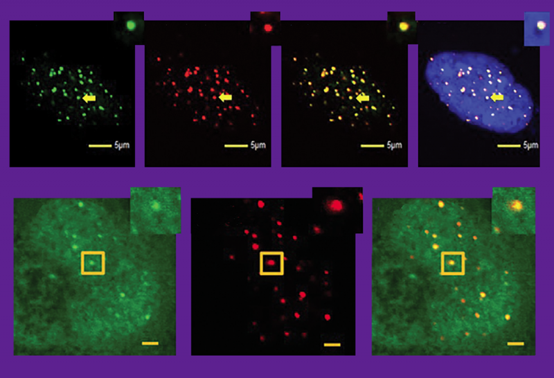 In this first row of images, Pitt's Li Lan shows how the KillerRed dye (stained green) can be attached to sites of individual telomeres (marked with red dots). Blue is a nucleus. By breaking these components down in highly specific ways, Lan says, we can better understand how cancer cells build themselves back up. One way cancer cells repair damage is with an enzyme, a kinase called Nek7. In the second row of images, you can see the tiny dots of Nek7 glowing green, then the telomere-targeted damage caused by KillerRed (in red), and finally an overlay showing that Nek7 comes in to stabilize the telomere once it's been damaged. No one knew this interaction existed until Lan brought it to light recently.