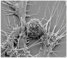 Here's a T cell with dendritic cells (long, treelike shapes) attached, in the process of transinfection. Pitt researchers are exploring what happens when dendritic cells have less cholesterol. They think that might protect against transinfection.