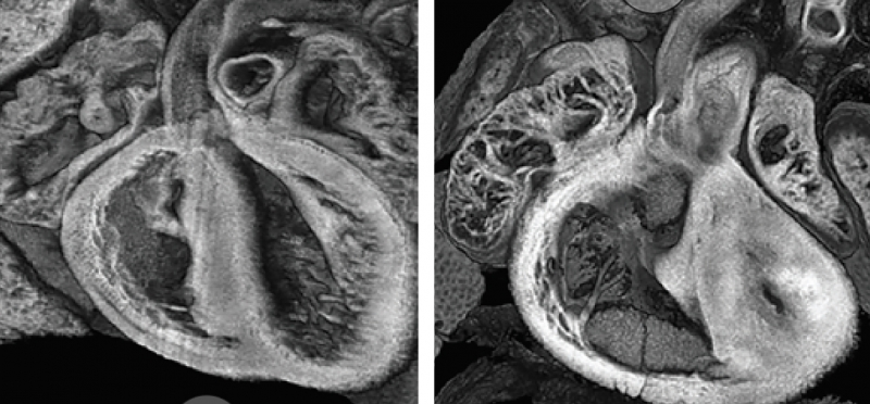 LEFT: Typically developing heart ventricles in a mouse. RIGHT: The heart of a mouse with a mutation resulting in an underdeveloped left ventricle, as seen in a rare condition in newborns.