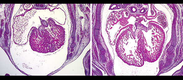 The hearts of two mouse embryos share the same mutation. The one on the right was subject to correction of a gene in the placenta, and only in the placenta, demonstrating that the defect on the left is entirely the result of placental malfunction.