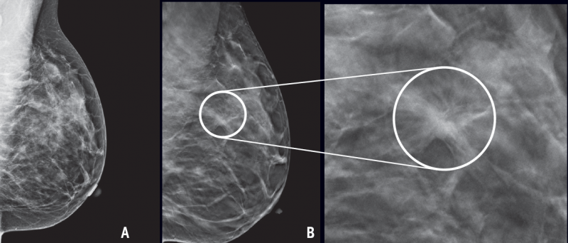 In dense breast tissue, tumors can be difficult to detect with standard mammography (A). The cancer here was not detectable on mammography but is more readily seen on 3D mammography (B, with close-up).