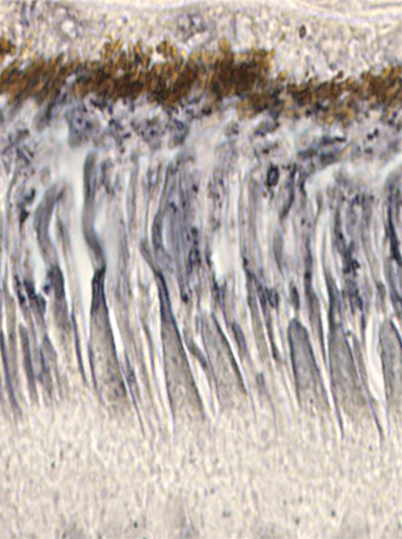 In retinitis pigmentosa, rod cells die because of a genetic mutation; Sahel's team discovered why cone cells eventually die, too. Rods release a protein, RdCVF, that cones need to absorb energy. Here, RdCVF's receptors (gray) dot both the edges of the conical cells inside the brown epithelial cell layer.